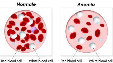 anemia-rimedi-naturali